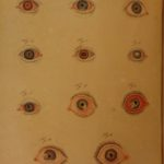 1828 Robert Froriep Ophthalmology Medicine EYES Surgery Color Illustrated German