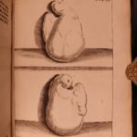 1724 Medicine & CANCER Surgery Tumors Severino Abscessum Recondita Illustrated
