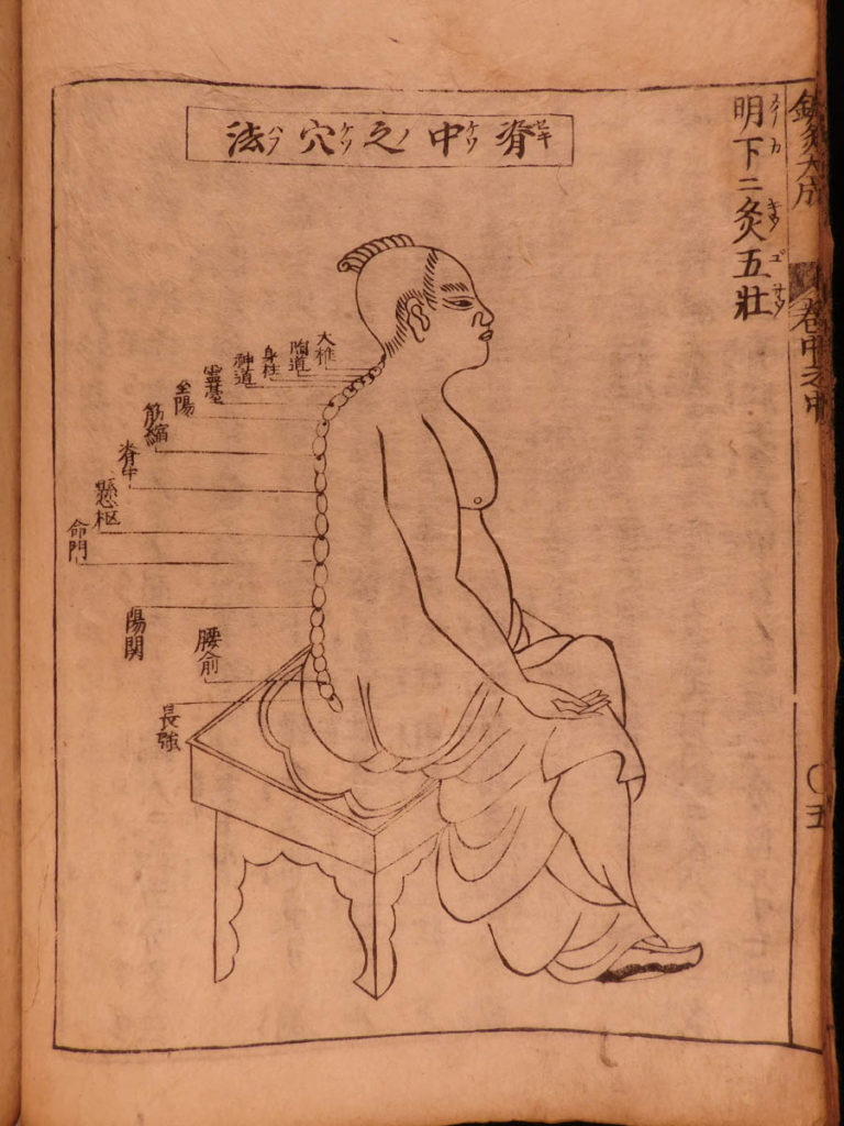 Image of 1699 Japanese Acupuncture Illustrated Woodblock Medicine Shinkyu Bassui Taisei