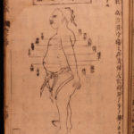 1699 Japanese Acupuncture Illustrated Woodblock Medicine Shinkyu Bassui Taisei