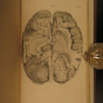 1836 1ed NEUROLOGY Human Brain Solly Anatomy Surgery Medicine Disease ILLUSTRATED